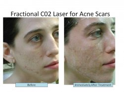 Acne Scar Removal NYC - Fractional CO2 Laser Surgery