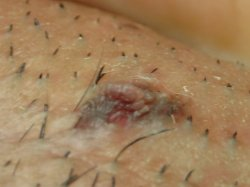 Is this a mole or wart? I m concerned.. Genital area PICS at Moles